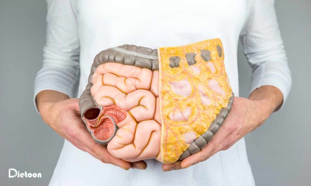 ملاحظات غذایی درسرطان روده بزرگ